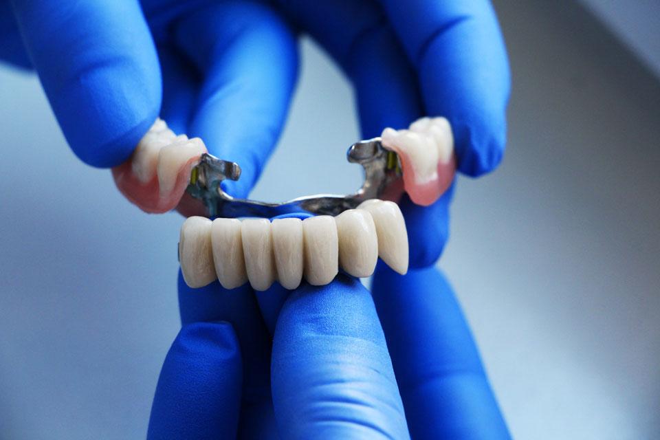 Teilprothese mit abgenommenen Zähnen